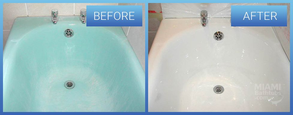 Before & after gallery | Miami Bathtubs